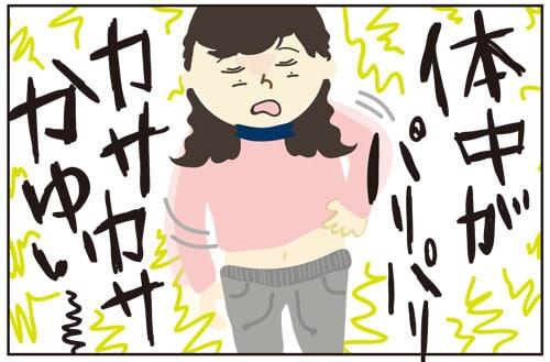 乾燥肌にはこれ!海外でも愛用中!日本の万能保湿クリーム(超乾燥肌におすすめ)